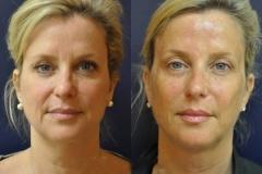 foto do i posle altera-terapii litsa
